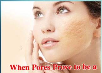 When Pores Prove to be a Hurdle for the Beauty - Sachi Shiksha